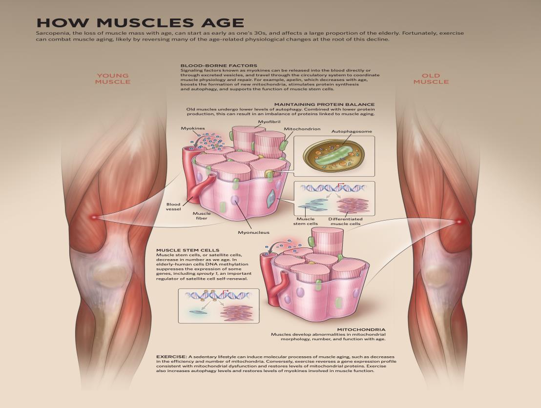 Μυϊκή γήρανση και άσκηση - Πόσο βοηθάει;